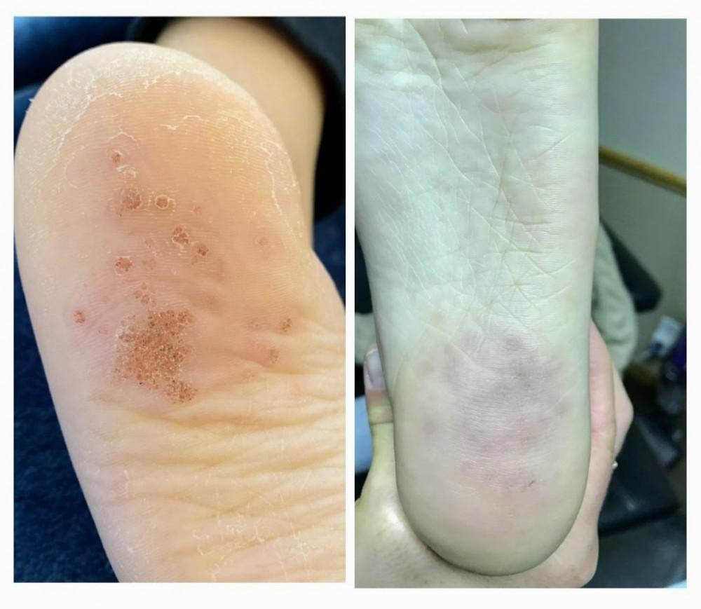 Swift Microwave Wart Treatment: Before and After!